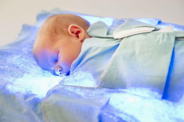 Лікування жовтушки у немовлят