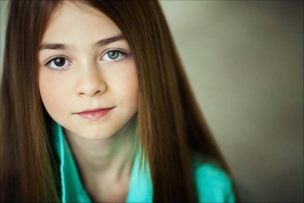 Гетерохромія у літей: якого кольору будуть очі у дитини