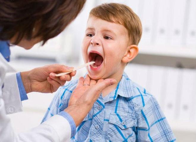 Інфекційний мононуклеоз у дітей – лікування