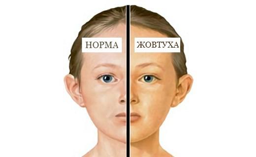 Гепатит А симптоми та діагностика. Період жовтухи
