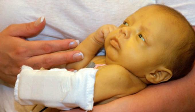 Як виглядає жовтуха у новонароджених